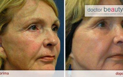 I trattamenti estetici del viso con la radiofrequenza medicale